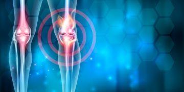 osteoarthritis stem cell regenerative medicine