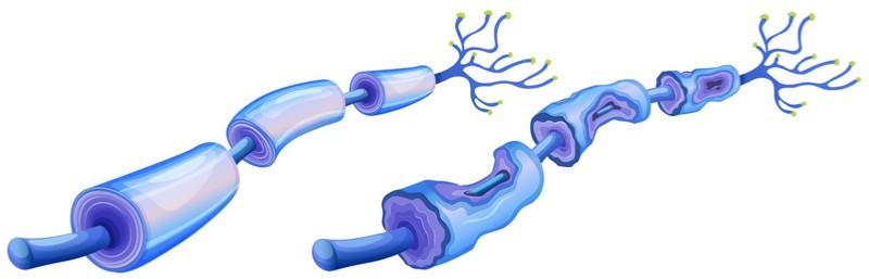 polyneuron anti-mag peripheral neuropathy autoimmune disease