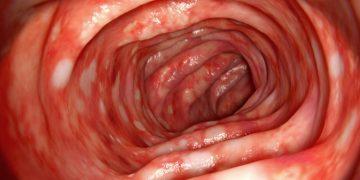 ulcerative colitis abivax hiv header