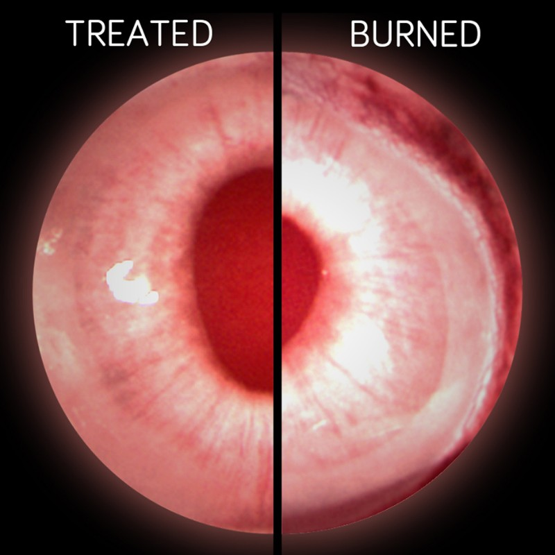 chemical burns cornea university of newcastle stem cells