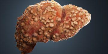 liver fibrosis alentis switzerland cirrhosis cancer