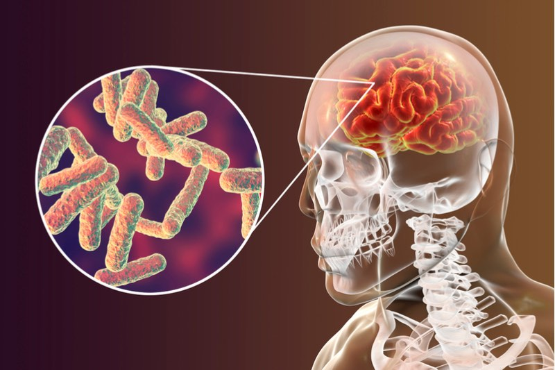 meningitis antibiotic resistance sweden