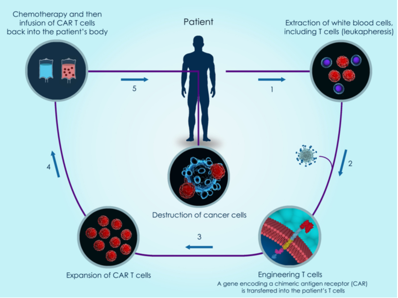 Cell Therapy - CAR T-cell process