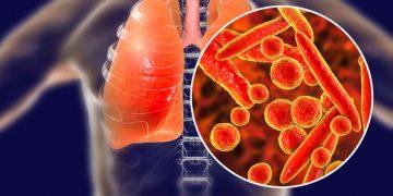 combioxin antibiotic resistance pneumonia