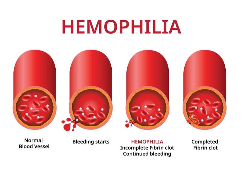 hemophilia b uniqure gene therapy