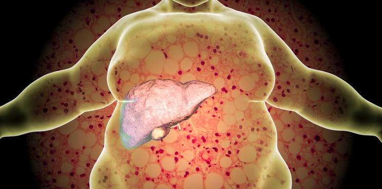 liver disease nash genfit