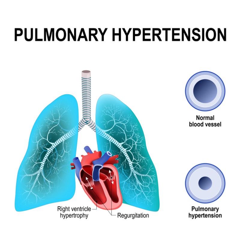 owlstone medical pulmonary hypertension heart failure