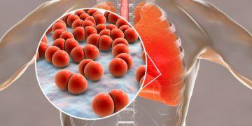 pneumonia lungs polyphor antibiotic resistance