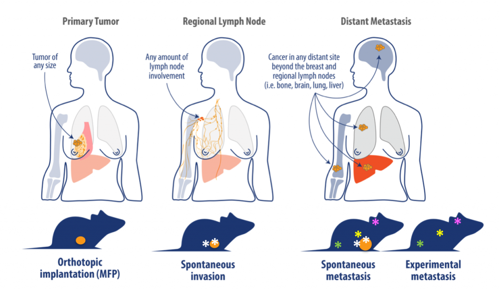 breast cancer, orthotopic tumor model, breast cancer development