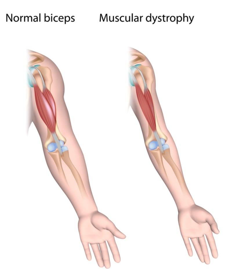 crispr cas9 muscle crispr therapeutics vertex