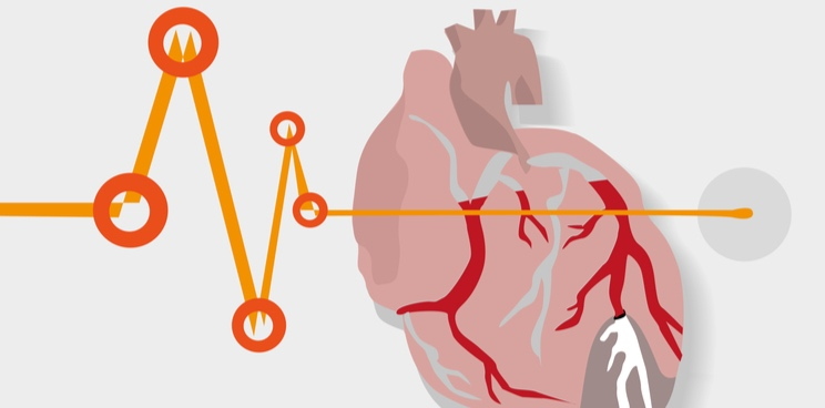 cardior pharmaceuticals heart failure