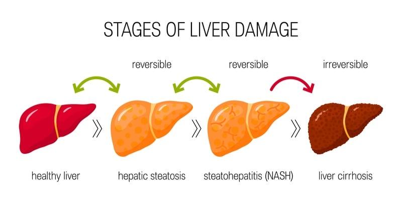 nash genfit liver fibrosis terns pharmaceuticals