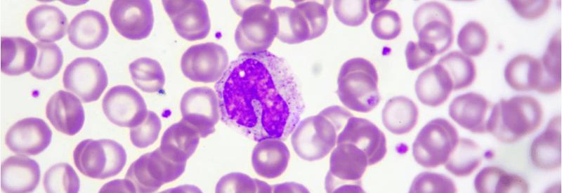 monocytes, monocytes in blood smear, monocyte activation test