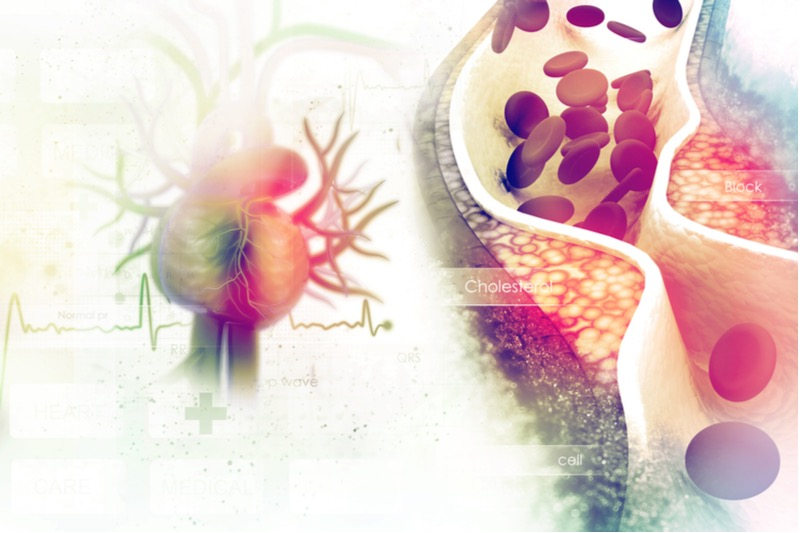 cardiovascular disease anti-aging italy gene therapy