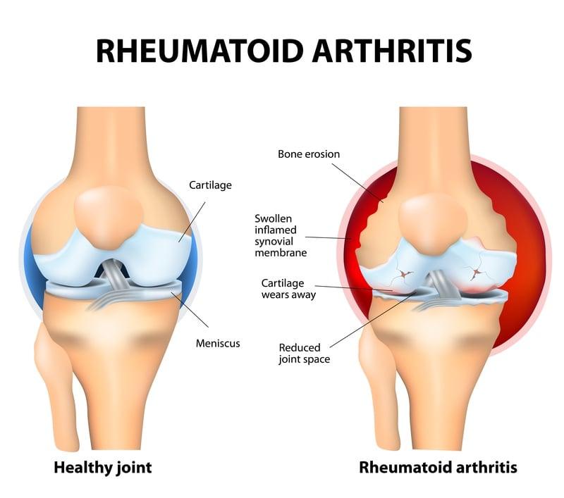 galapagos gilead rheumatoid arthritis pulmonary fibrosis