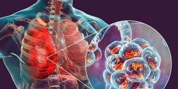 Nabriva story - bacterial pneumonia antibiotic