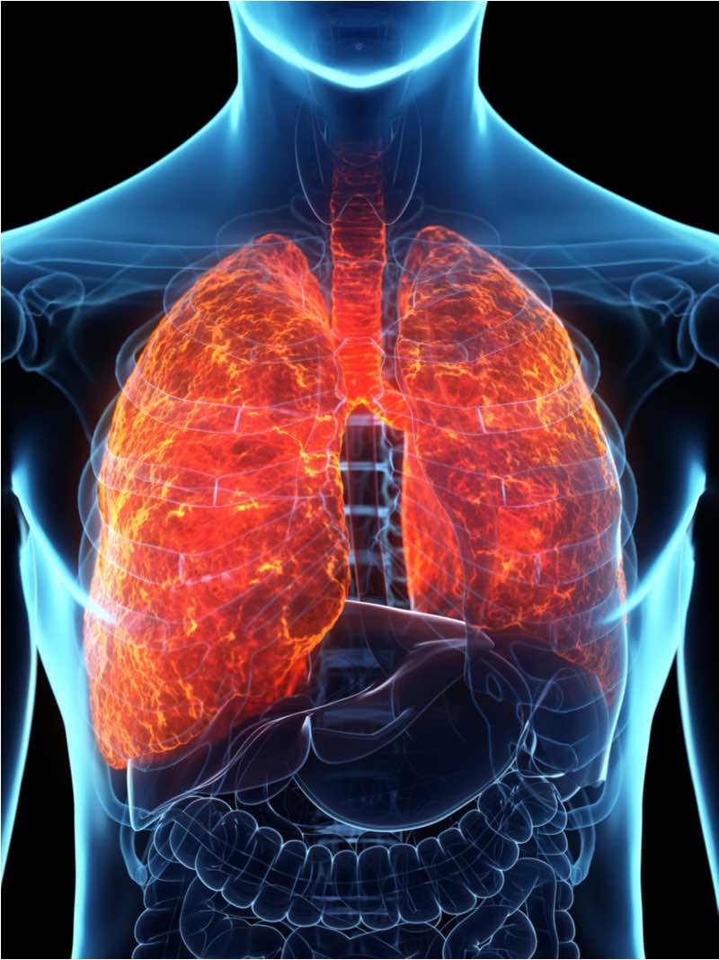 acute respiratory distress syndrome pantherna therpeutics inflammatory lung disease
