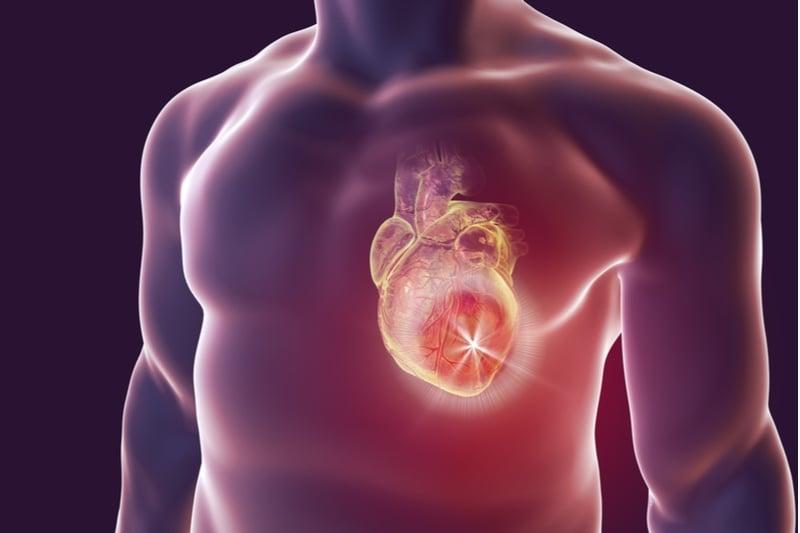 cardiology cardiovascular disease heart attacks