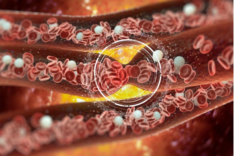 cardiovascular disease heart attack blood clot