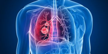 oncimmune liquid biopsy lung cancer test