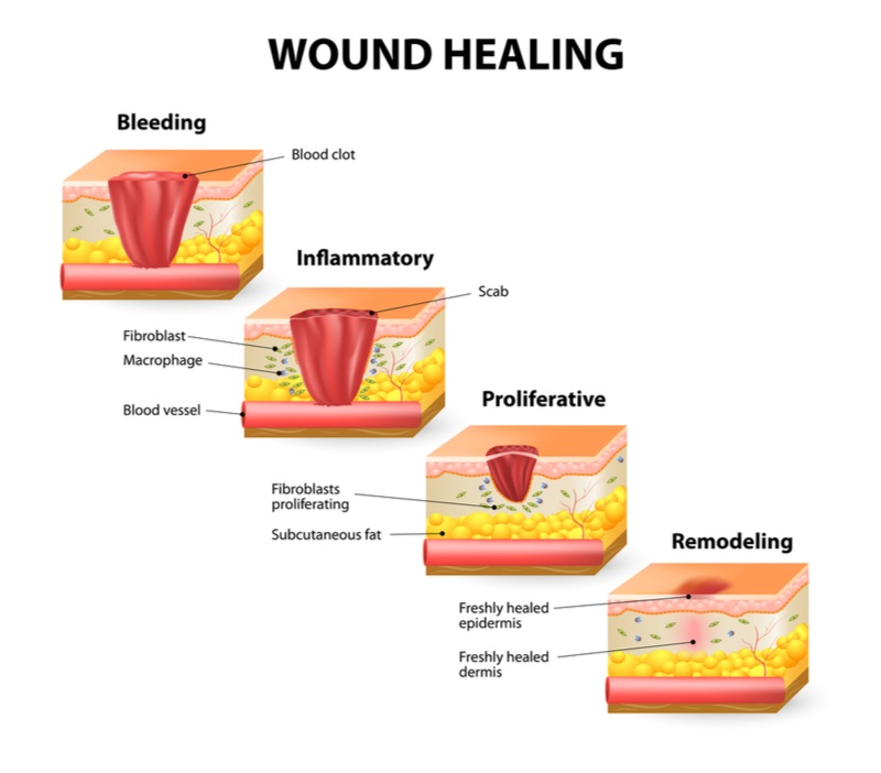 wound healing tooth loss omnio sweden