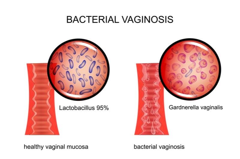 bacterial vaginosis phagomed biopharma gardnerella
