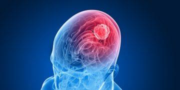 brain cancer ai uk clinspec diagnostics