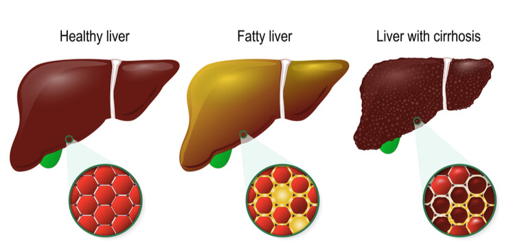 stages of liver damage, NASH, fibrosis, cirrhosis