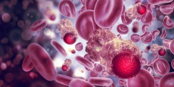 Blood cancer cells - Cellestia