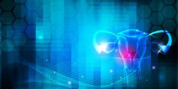 uterine fibroids obseva