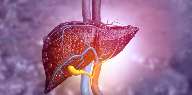 nash northsea therapeutics, liver disease, disease modeling