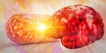 lnc therapeutics brain microbiome