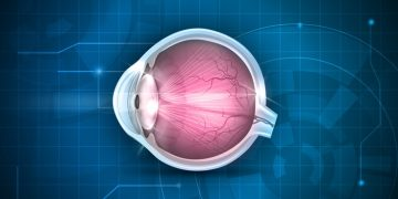 cataract surgery recovery oculis