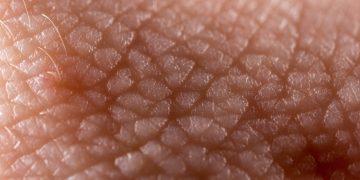 psoriasis skin affibody