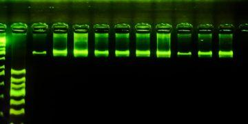 gel documentation, gel analysis, gel imaging, gel electrophoresis